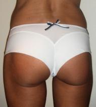 Antinea Panty CCA0434 originál