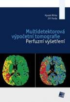 Galén Multidetektorová výpočetní tomografie