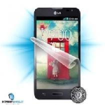 Screenshield pro LG L90
