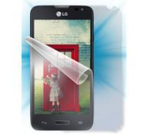 Screenshield celé tělo pro LG D280n