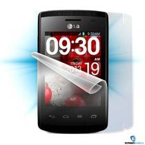 ScreenShield pro LG Optimus L1 II celé tělo