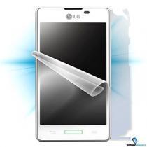ScreenShield pro LG Optimus L5 II celé tělo